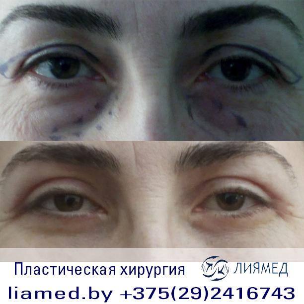 "Медицинский центр ""Лиямед"" в Бобруйске"