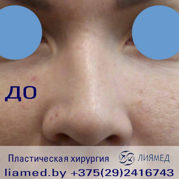 """Ринопластика в Бобруйске Медицинский центр """"Лиямед"""""""